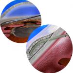 xen-gel for glaucoma sydney